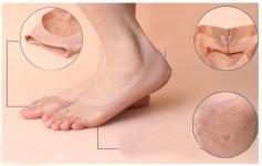 фото 8384  Капроновые носочки с защитой от натирания цена, отзывы
